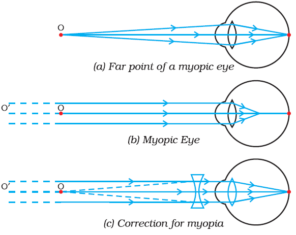 myopia diagram class 10
