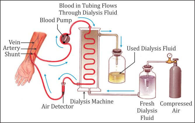 Give A Large Description On Hemodialysis Of About 1000